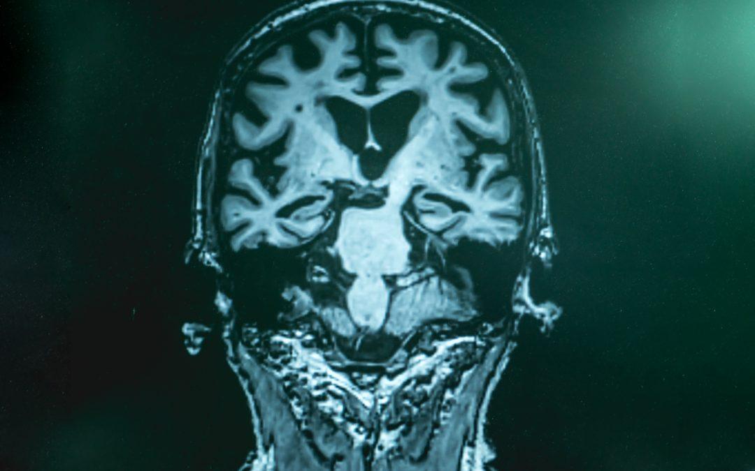 The Future Treatment of Alzheimer's